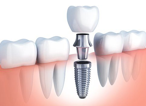 Animated parts of a dental implant replacement tooth