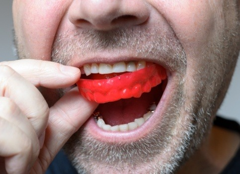 Man placing protective mouthguard