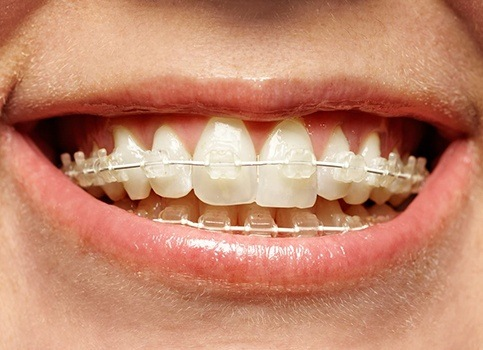 Patient with six month smiles ceramic braces